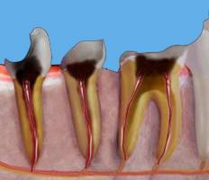 Разрушенной коронковой части зуба
